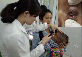 Nhỏ sữa mẹ chữa đỏ mắt, bé 7 tháng tuổi bị hỏng mắt vĩnh viễn