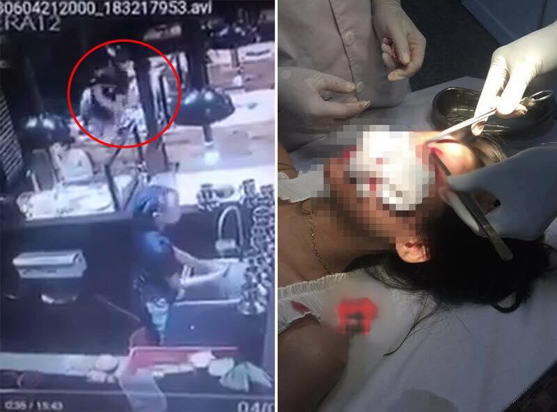 Hai cô gái bị nam thanh niên đánh trọng thương ở quán ăn