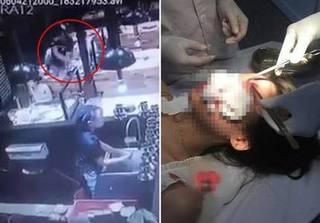 Nam Định: Hai cô gái bị nam thanh niên đánh trọng thương ở quán ăn