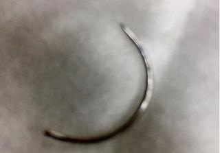 Sản phụ đau đớn trải qua ca phẫu thuật 6 tiếng để lấy cây kim bác sĩ để quên trong vùng kín