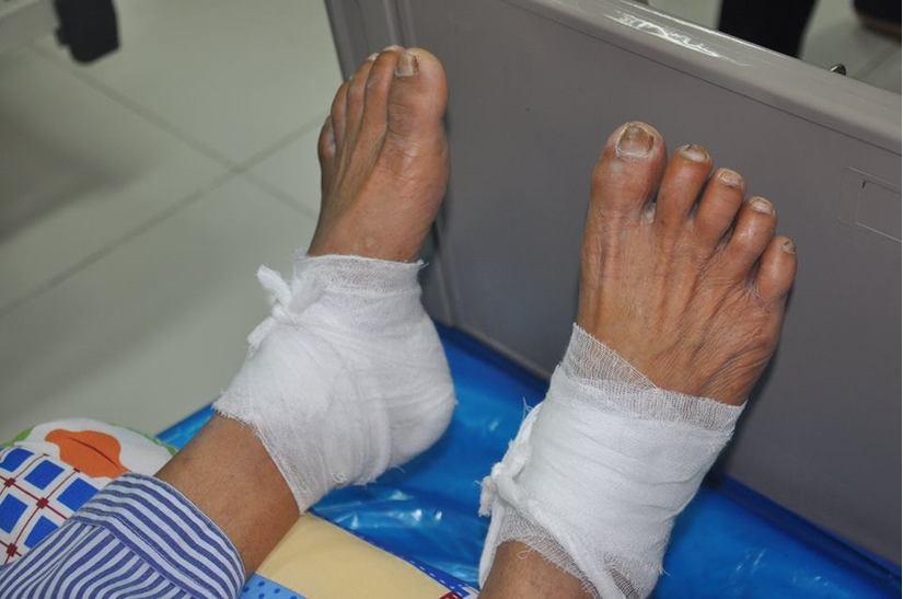 Bệnh nhân tiểu đường bị bỏng độ 3 do chườm nóng bằng lá ngải cứu 2