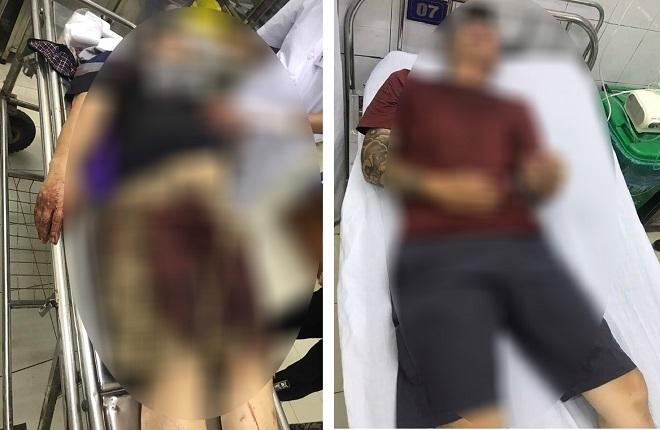 Hai cha con bị nhóm người đánh trọng thương