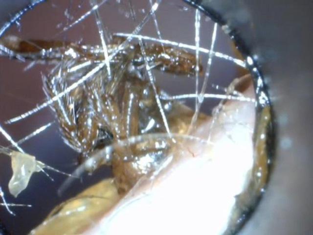 Hết hồn xem cảnh bác sĩ gắp nhện mắc kẹt trong tai bé trai