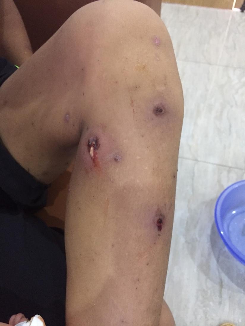 Bệnh nhi bị bội nhiễm vì không điều trị dứt điểm thuỷ đậu 2
