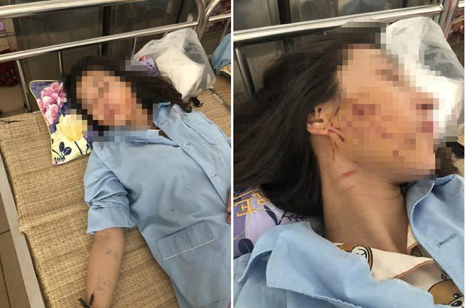 Sau sự việc xảy ra chị G phải tới bệnh viện điều trị