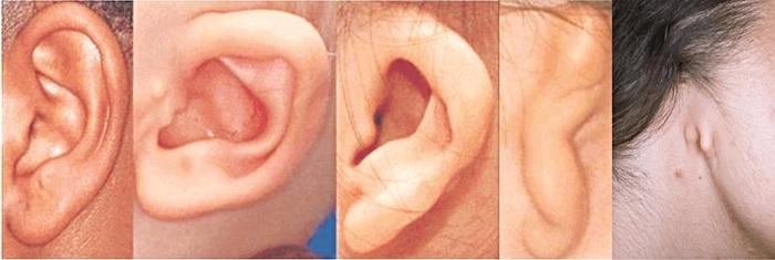 Phẫu thuật vá vành tai. Ảnh: Internet