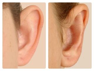 Phẫu thuật chữa tai vểnh an toàn thẩm mỹ
