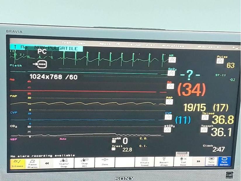 Ca ghép tim cứu sống cháu bé 15 tuổi ở BV trung ương Huế 3