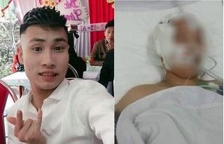 Tạm giữ hình sự thanh niên đánh bạn gái chấn thương sọ não dẫn đến tử vong