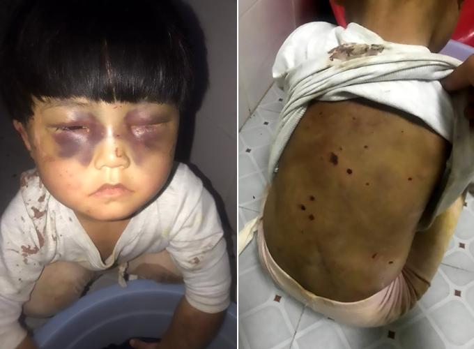 Cô bé 4 tuổi gần như không mở nổi đôi mắt bầm tím vì bố vừa xích vừa đánh đập