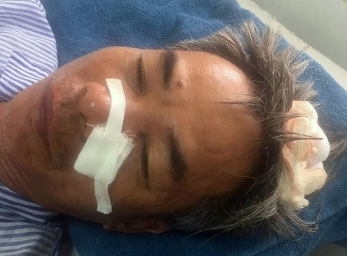 Quảng Ninh: Khởi tố, bắt tạm giam đối tượng hành hung khiến 3 người nhập viện