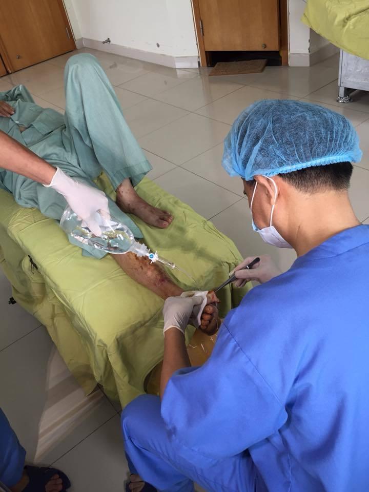 Chủ quan, bệnh nhân đái tháo đường phải tháo khớp ngón 2