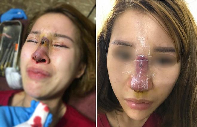 Nâng mũi tại spa, cô gái 22 tuổi bị bầm tím, viêm nhiễm