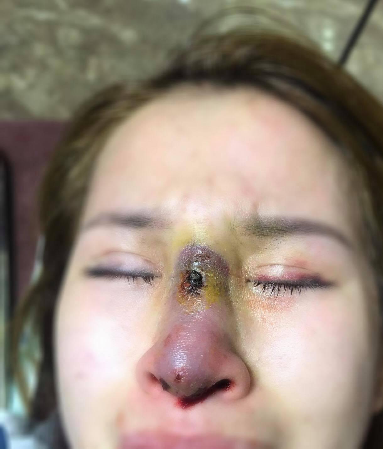 Mũi chị H. sau khi làm về bị viêm