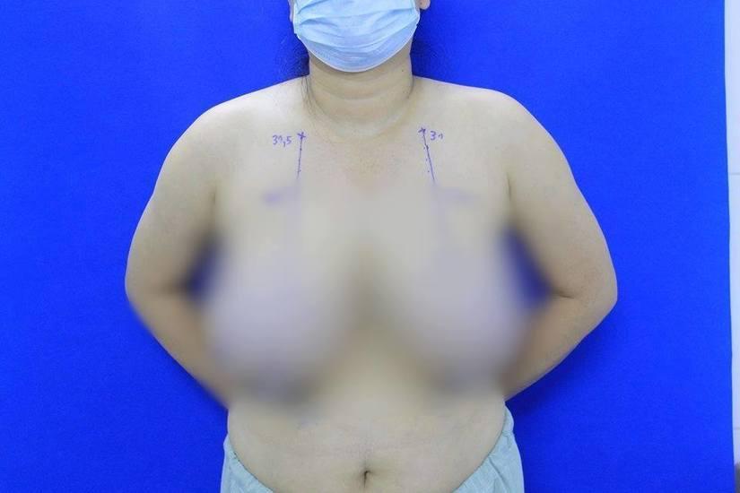Giải cứu nữ bệnh nhân bị phì đại tuyến vú