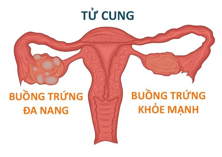 Mắc buồng trứng đa nang có thể mang thai không 2