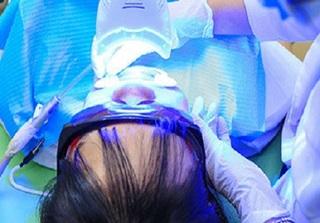 Công nghệ tẩy trắng răng bằng Laser