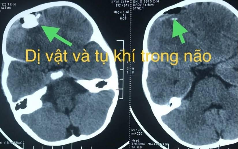 Bé trai 33 tháng tuổi bị súng tự chế bắn dập não 2