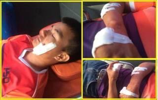 Nam Định: Tài xế xe buýt bị chém nhập viện nghi mâu thuẫn giành khách