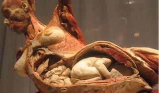 Tranh cãi quanh triển lãm nội tạng và cơ thể người thật đã nhựa hóa
