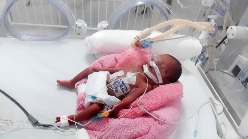 Hơn 10 bác sĩ phẫu thuật cấp cứu cho bé sinh non ở tuần 24