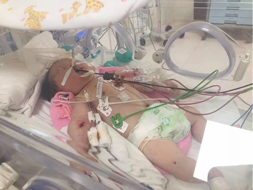 Bé sơ sinh bị rối loạn chuyển hoá bẩm sinh