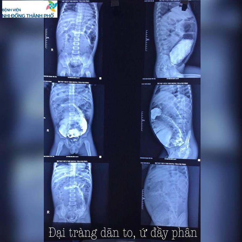 Bé trai bị táo bón hơn 5 năm, đại tràng ứ đọng 3 kg phân