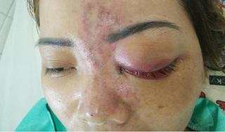 Cô gái nguy cơ mù mắt vĩnh viễn vì tiêm chất làm đầy sống mũi