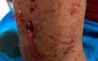 Thêm một trường hợp trẻ nhỏ bị chó nhà cắn nát tay