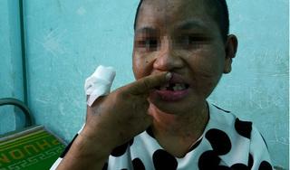 Vụ hành hạ người làm thêm ở Gia Lai: 'Chơi đá' xong là đánh đập