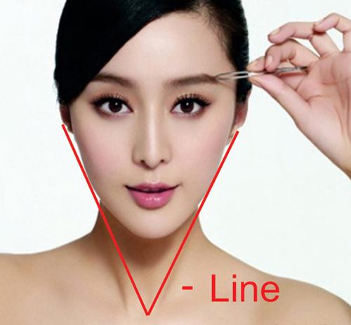 Phẫu thuật gọt cằm Vline 3D công nghệ Hàn Quốc