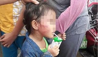 Cô giáo nghi đánh bé gái 5 tuổi nứt xương hàm ở Bình Chánh