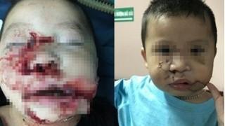 Thêm hai bé trai bị chó cắn gây tổn thương nặng phải nhập viện khẩn cấp