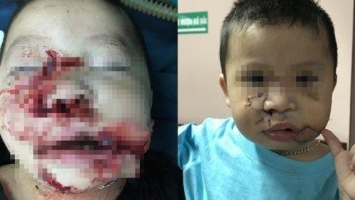Thêm hai bé trai phải nhập viện cấp cứu vì bị chó cắn 2