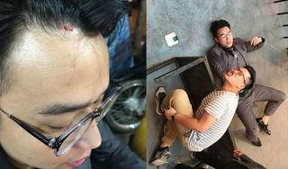 Minh Tít bất ngờ gặp tai nạn trên phim trường