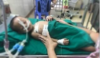 Nghệ An: Đùa nghịch súng hơi, bé 19 tháng tuổi bị đạn găm trúng ngực