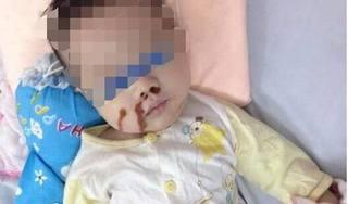 Tưởng axit là thuốc nhỏ mũi, mẹ khiến con bị bỏng nặng phải nhập viện cấp cứu