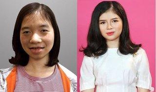 Cô gái 18 năm không dám soi gương 'lột xác' sau 5 lần phẫu thuật thẩm mỹ