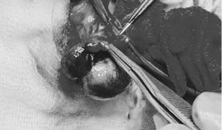 Bé trai 6 tuổi phải cắt bỏ tinh hoàn sau 1 đêm đau bụng dữ dội