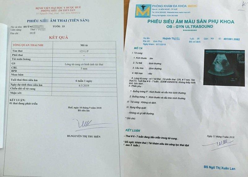 Thai phụ suýt mất con ở Huế: BV kết luận bác sĩ dùng từ 'chưa nhuần nhuyễn'