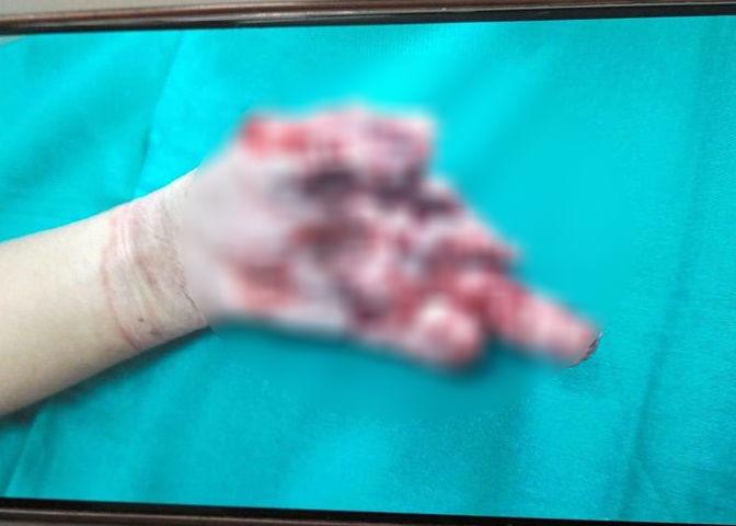 Chuyên gia lý giải cơ chế phát nổ của pin điện thoại khiến bé trai nát bàn tay