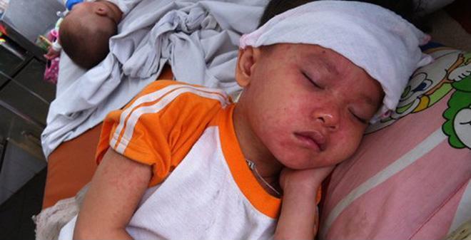 Lương y mách cách chữa sởi cho trẻ bằng hạt mùi, lá mùi chuẩn nhất