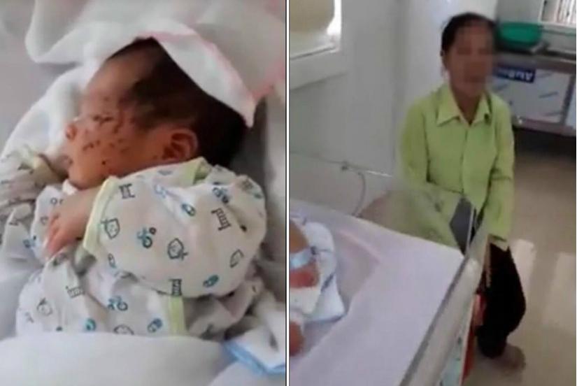 Sức khỏe bé sơ sinh bị mẹ đẻ nhét xuống nhà xí ở Thái Nguyên ra sao?