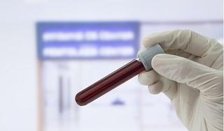Virus HIV có thể lây nhiễm từ cha sang con qua dịch tiết từ mụn