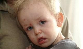 Sẽ sớm có vắc xin phòng bệnh tay chân miệng do virus EV71 gây nên