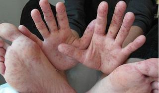 21.000 trẻ nhập viện vì bệnh tay chân miệng, Bộ Y tế hướng dẫn đối phó