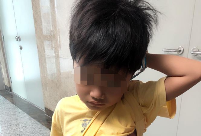 'Bắc cầu' bằng mạch máu, cứu bé trai 5 tuổi ói ra máu ồ ạt
