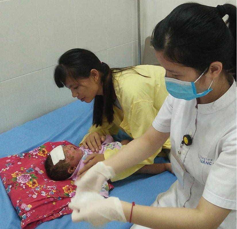 Bé sơ sinh bị bong tróc cả mảng da mặt vì tắm lá chữa mẩn ngứa