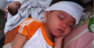 Đã có hơn 400 ca mắc sởi ở Hà Nội, TP. HCM chớm dịch