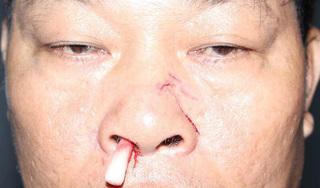 Bị đánh gãy sống mũi vì đến quán cà phê báo cắt điện